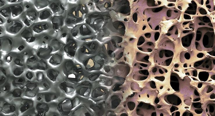 Titanium additive manufacturing